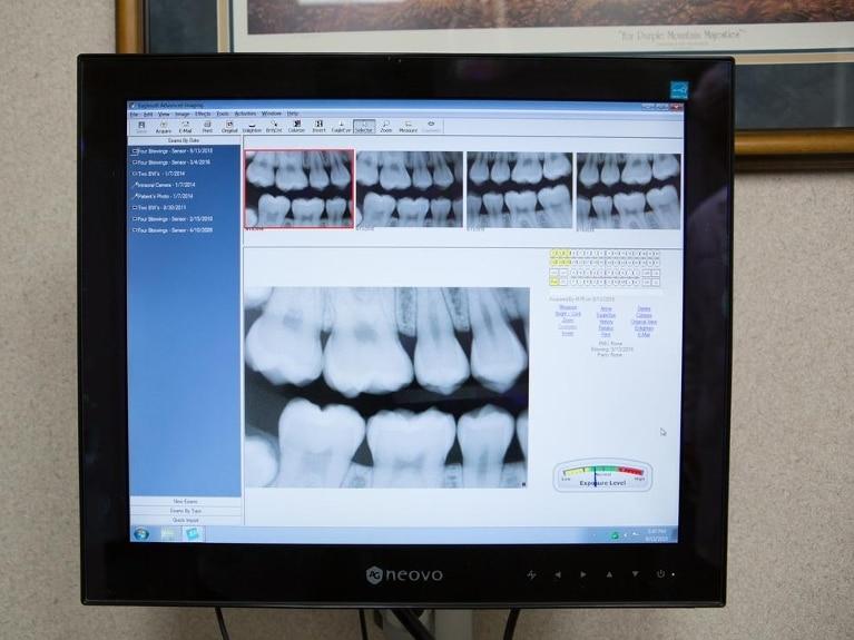 Digital-Dental-X-Rays