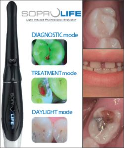 SOPROLIFE-intraoral-camera