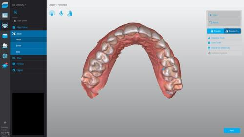 VirtuoVivo-Upper-Dental-Wings